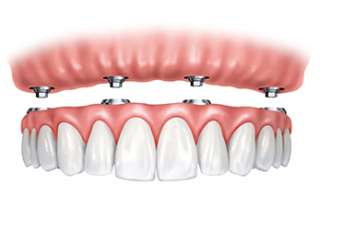 dental center glyfada offers all on4 implant procedure teeth in 1 day