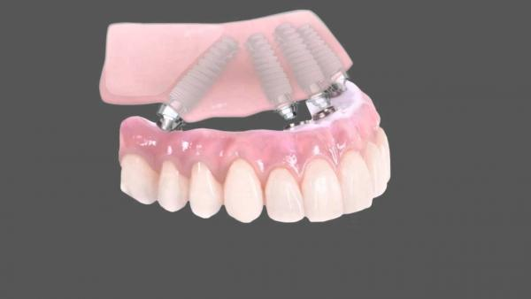get the most affordable dental implant services for patients in glyfanda