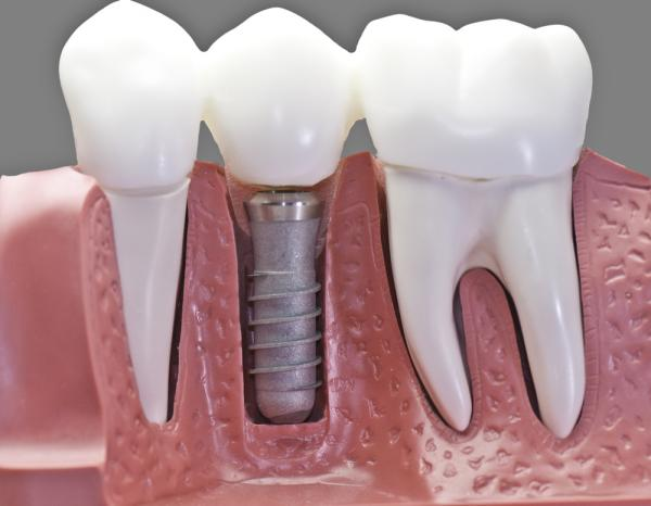find the top restorative dentist in waukesha offering dental implant treatments