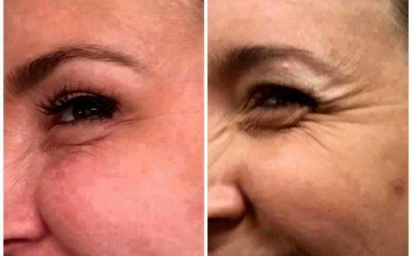 get the best anti aging bioenergy serum for rejuvenated amp youthful skin