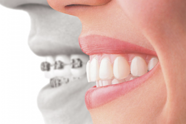 get the best invisalign consultation and dental treatment in mt eden auckland